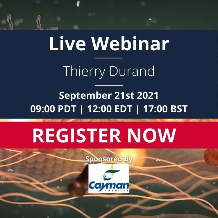 Advert: Thierry Durand Live Webinar